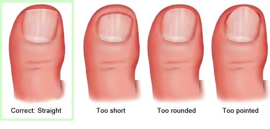 file your toenails to avoid ingrowns