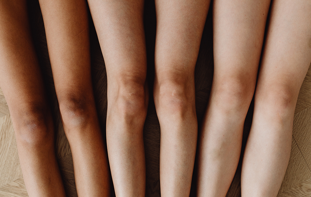 women showcasing their knees without skin brightening ingredients that will minimize dark spots