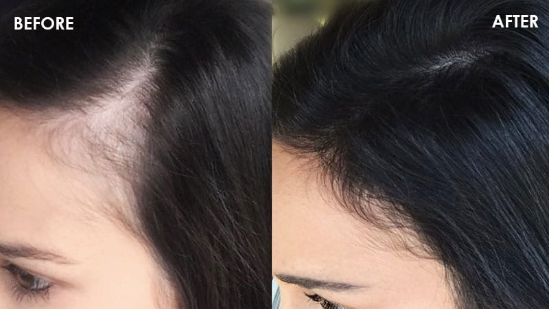 before and after covering hair loss