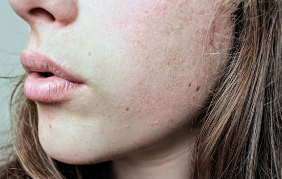 3 Tips to Prevent Back Acne and Other Skin Conditions When You Sweat6