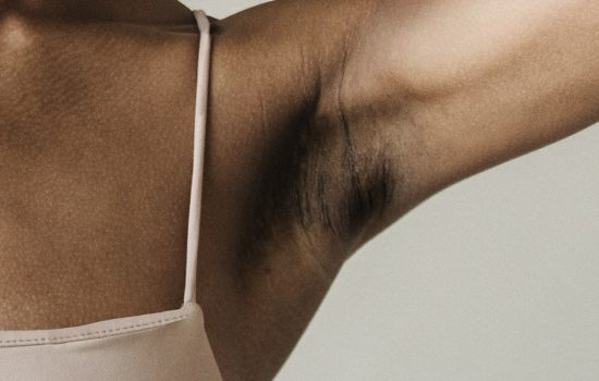 armpit with post-inflammatory hyperpigmentation