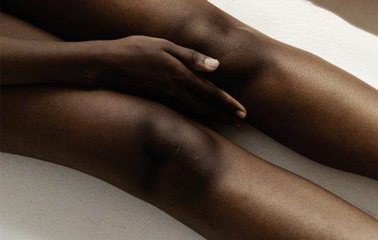 How to Treat Post Inflammatory Hyperpigmentation3
