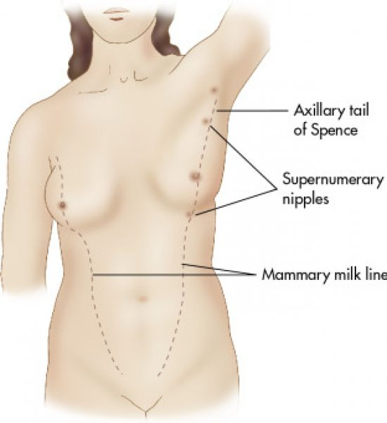 armpit-lumps-pregnancy-tail-of-spence